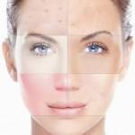 Cuidado de piel con aclarantes naturales